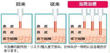 当院のレーザー治療
