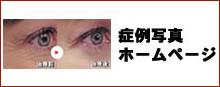 症例写真ホームページ